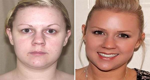 12 kilót fogyott és bőrproblémáitól is megszabadult a nő, amikor felhagyott ezekkel az ételekkel!