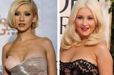 26 híresség plasztikai műtét előtt és után